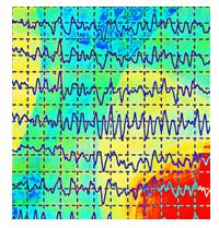 efeito na musica jacotte chollet da ondas cerebrais